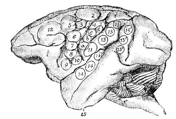What Makes a Human Brain Unique