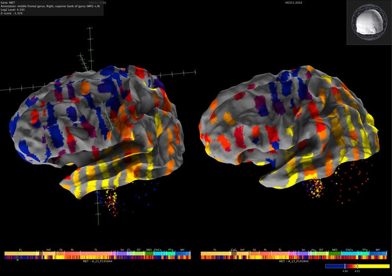 New Views of the Brain [Slide Show]