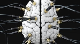 A Massive Global Effort Maps How the Brain Is Wired
