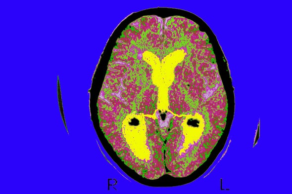 Antimicrobial Mechanism Gone Rogue May Play a Role in Alzheimer's Disease