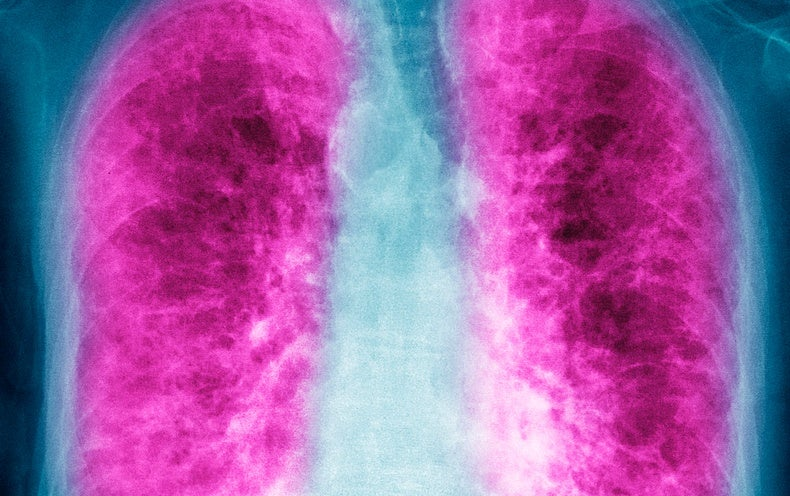 The Deadly Lung Disease You've Probably Never Heard Of