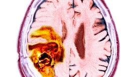 "Cancer Cells Have ""Unsettling"" Ability to Hijack the Brain's Nerves"
