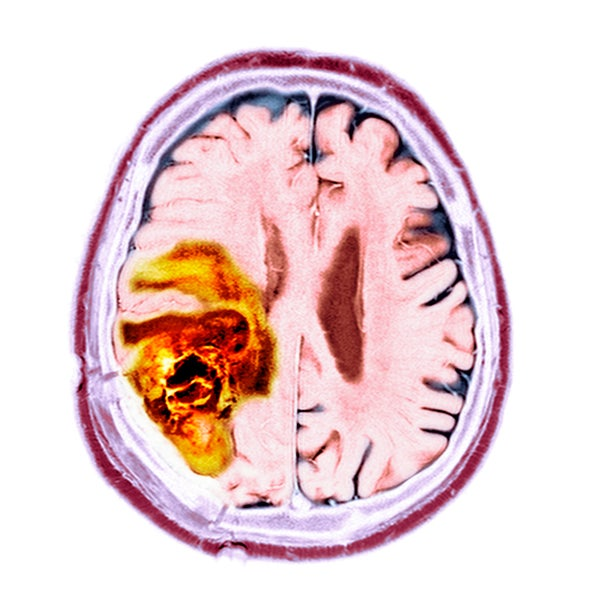 """Cancer Cells Have """"Unsettling"""" Ability to Hijack the Brain's Nerves"""