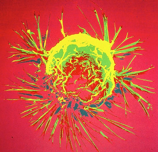 Did Cancer Evolve to Protect Us? - Scientific American