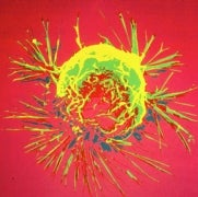 Did Cancer Evolve to Protect Us?