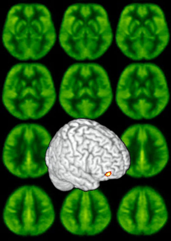 Stress on the Brain