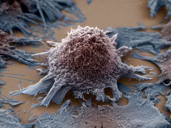 Could Brain Stimulation Slow Cancer?