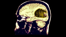 Brain Organoids Get Cancer, Too, Opening a New Frontier in Personalized Medicine