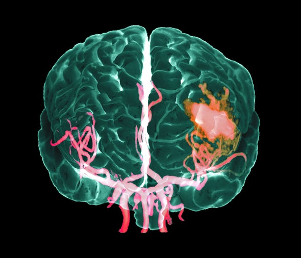 What Causes Strokes?