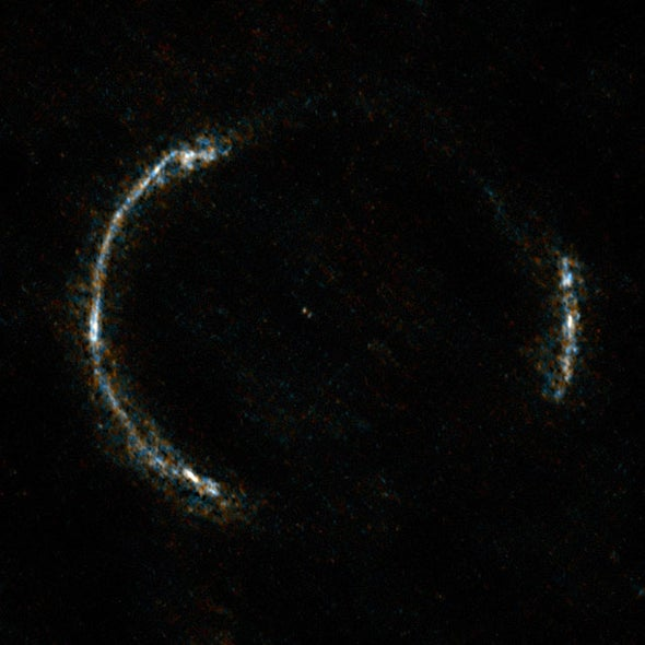Galaxy-Sized Lens Reveals Star Birth in the Deep Universe