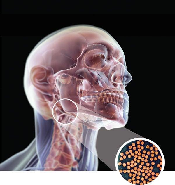 Cum afecteaza prezenta virusului HPV nasterea? - Besmax Hpv virus male