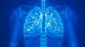 Sensors Save Lung Transplant Patients from Organ Failure
