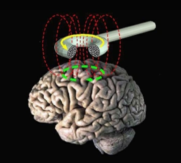Magnetic Stimulation May Halt Rumination in Depression