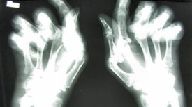 Arthritis Research Looks to Unlock Secrets of Heart Disease and Depression