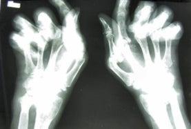 xray hands of rheumatoid arthritis