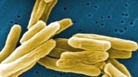 Synthetic Molecule Chokes TB Growth