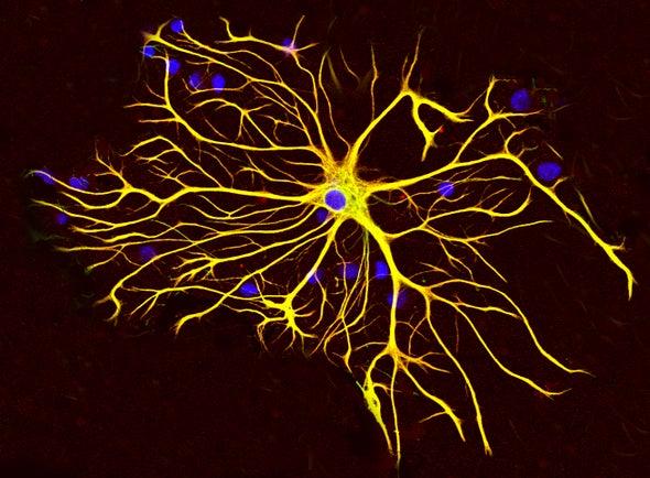 Autism Shares Brain Signature with Schizophrenia and Bipolar Disorder