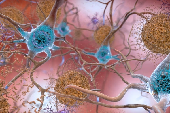 Alzheimer's Meeting: Lifestyle Factors Are Best--and Only--Bet Now for Reducing Dementia Risk