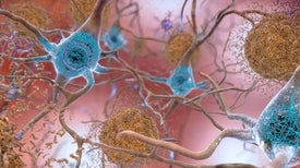 Alzheimer's Meeting: Lifestyle Factors Are the Best--and Only--Bet Now for Reducing Dementia Risk