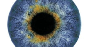 Gene Therapy Restores Sight to Three Patients
