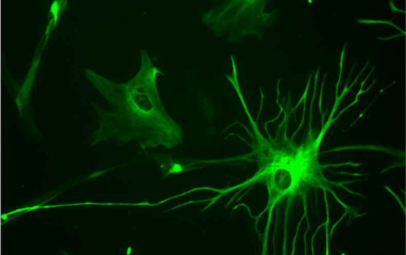 Mice Show Signs of Mental Disorder after Injections of Cells from Schizophrenia Patient