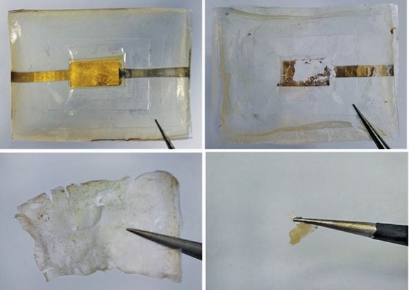 Tiny Silk Batteries Dissolve within Weeks