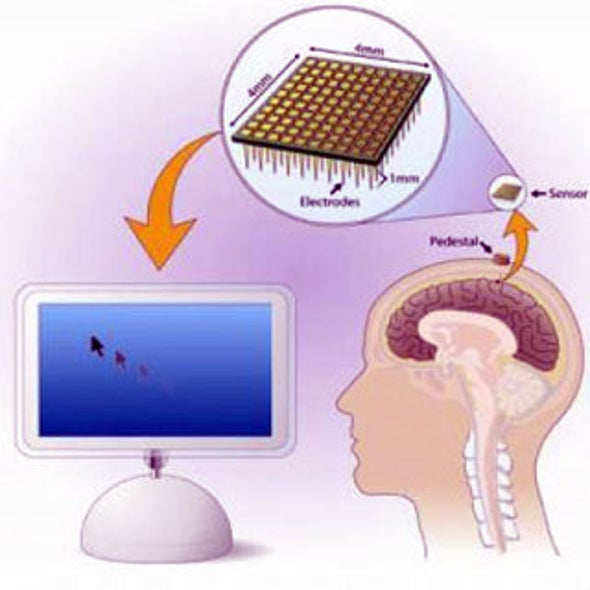 Plug and Play: Researchers Expand Clinical Study of Neural Interface Brain Implant