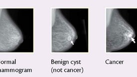 Ovarian, Breast Cancer Risk Vary According to Subtle Changes in Two Genes