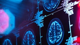 North Dakota Is a Laboratory for the Future of Alzheimer's in U.S.