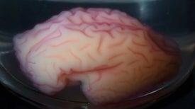Human Brain's Bizarre Folding Pattern Re-Created in a Vat