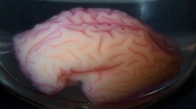 Human Brain's Bizarre Folding Pattern Re-Created in a Vat
