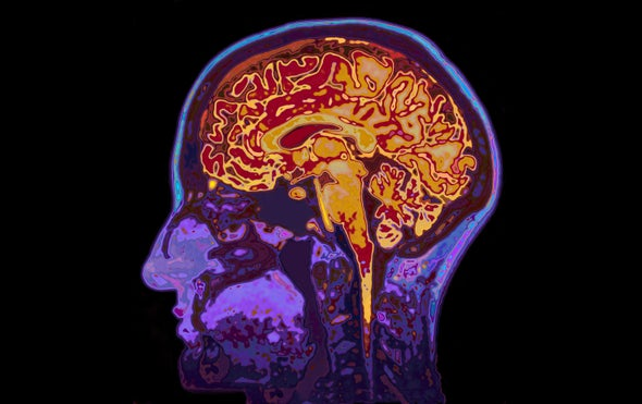 Forgotten Memories of Traumatic Events Get Some Backing from Brain-Imaging Studies